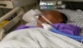 男子喝了放置几天的牛奶后晕倒送医 肾脏衰竭出血昏迷数日
